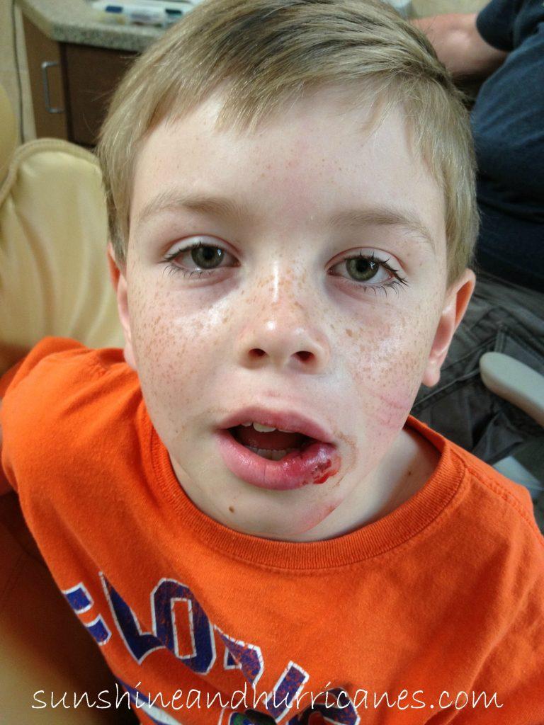 Kid's Dental Injuries